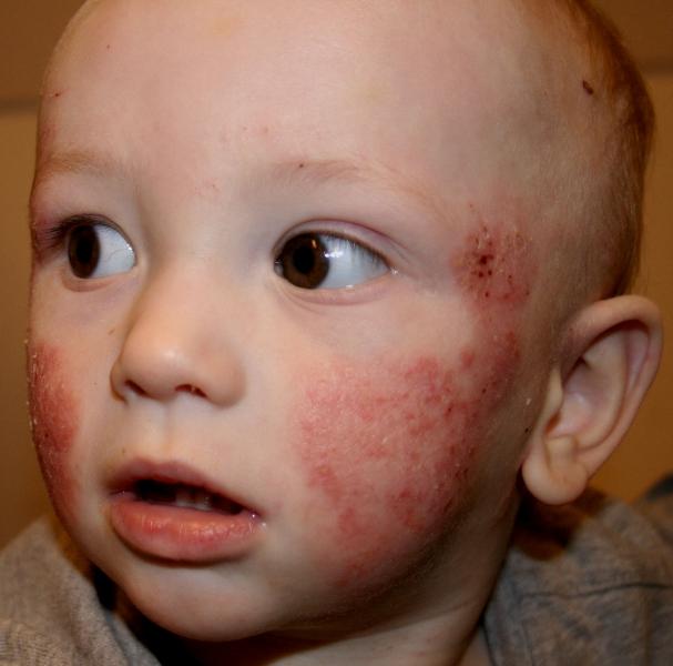 аллергия у детей фото сыпь фото
