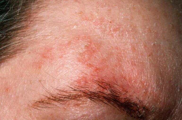 Лечение Псориаза И Рожи Уколами И Сист