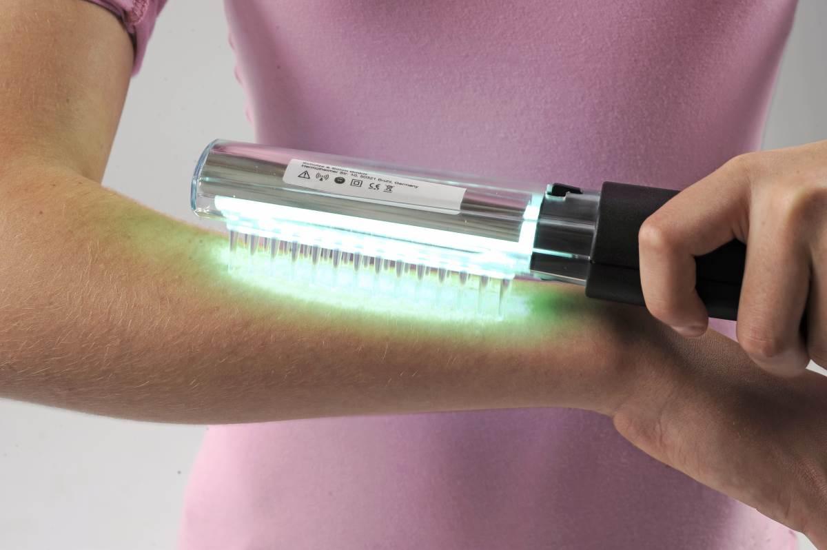 Ультрафиолетовое Облучение Псориаз