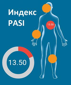 Индекс PASI
