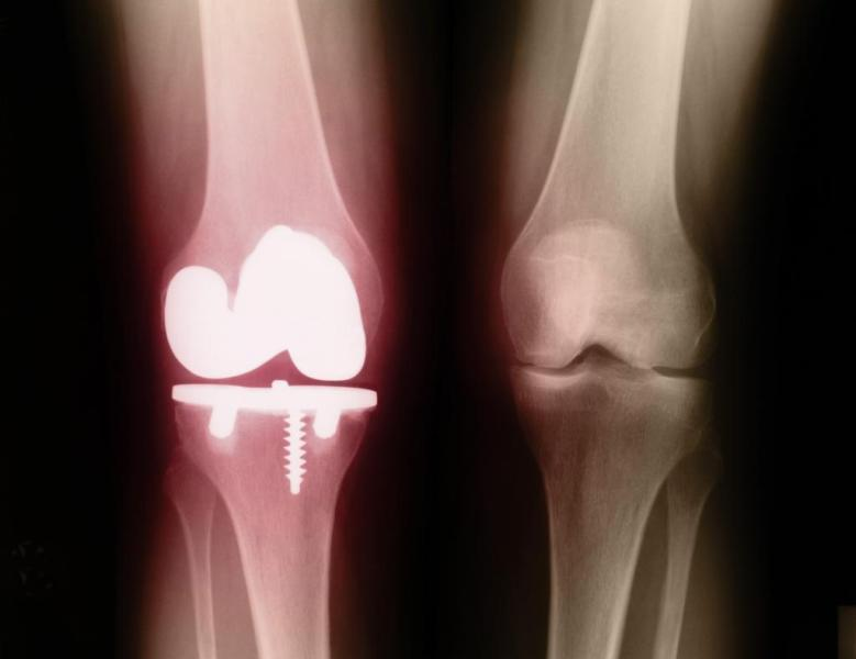 Псориатический артрит у детей