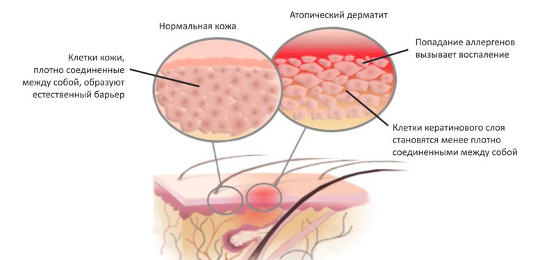 Атопический дерматит схема