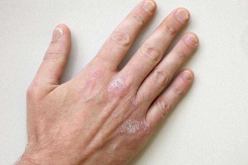 Псориаз фото PSORIASIS - лечение начальной стадии псориаза