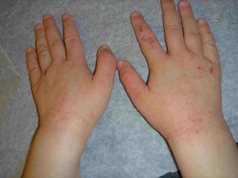 Первые признаки псориаза у женщин