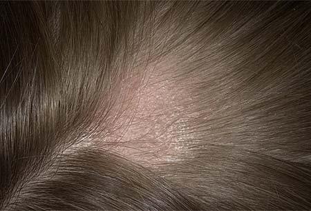 Лишай на волосистой части