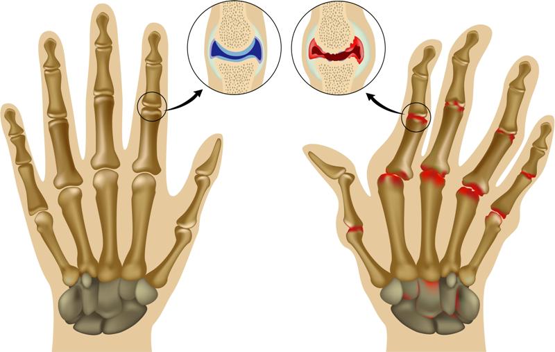 Появление артрита пальцев рук и методы лечения