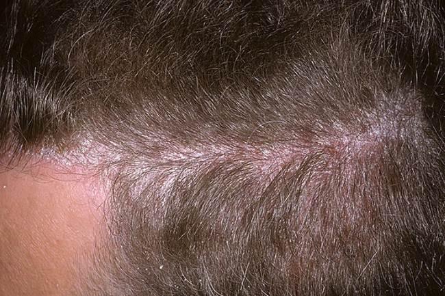 Псориаз-волосистой-части-головы-фото