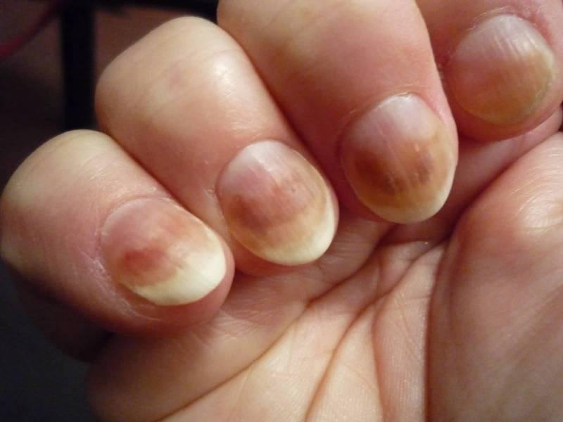 Грибки на ногтях рук показать