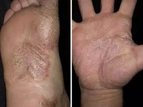 Псориаз на руках: симптомы и лечение. Чем и как лечить