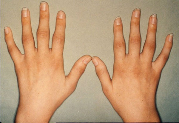 Что такое ревматоидный артрит: симптомы, диагностика и лечение ...