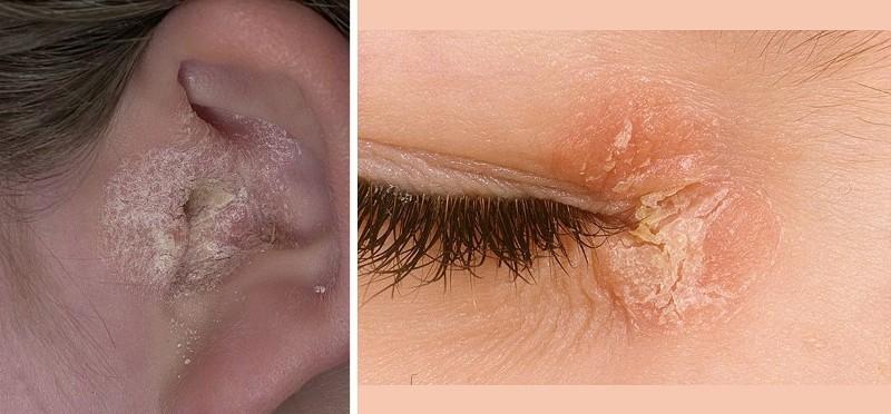 Фото псориаза на лице как выглядит псориаз на лице