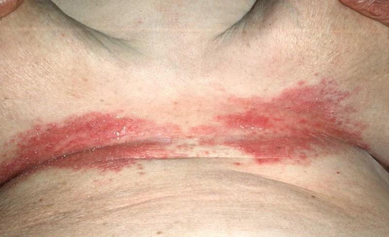 псориаз под грудью