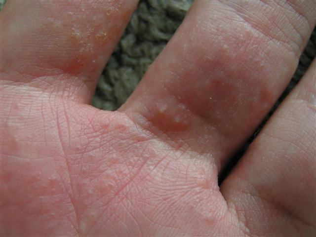 Признаки псориаза на руках