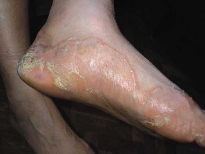 Псориаз симптомы (фото)