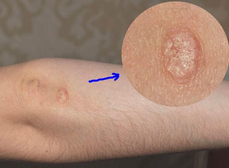 Псориаз на локтях - симптомы и лечение, фото