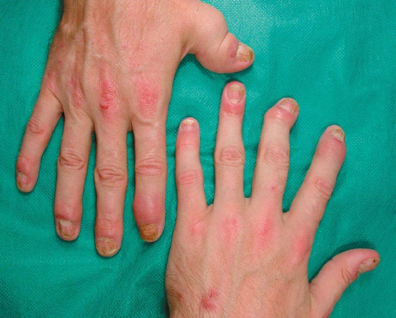 Наиболее опасен псориатический артрит