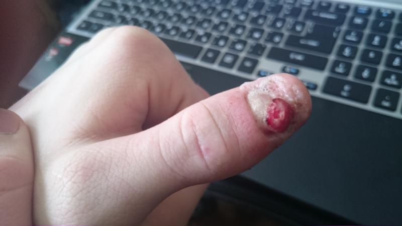 Онихия псориатическая – классифицируется нарушением ногтевой пластины