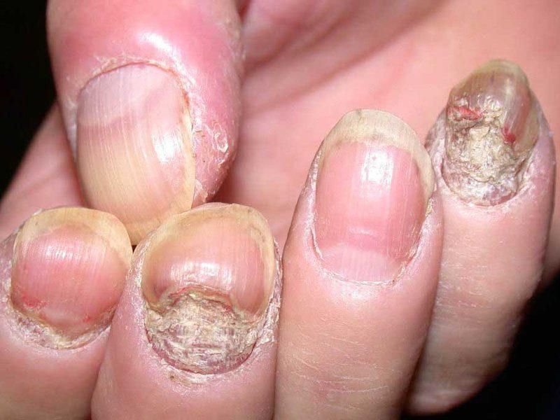 Причиной возникновения псориаза ногтей