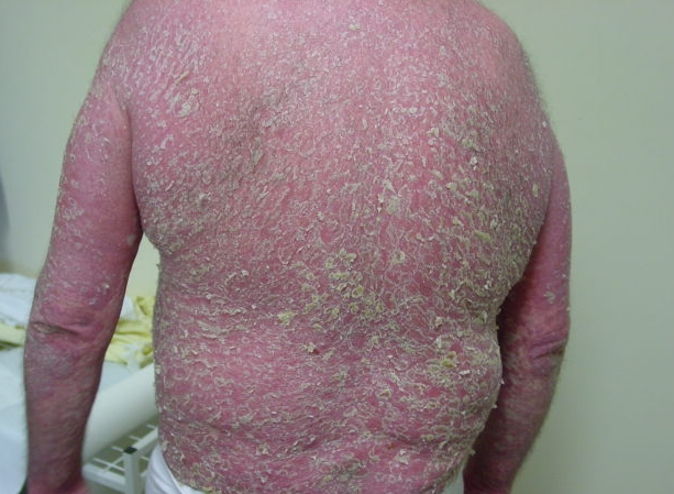 Последствия псориаза фото 31