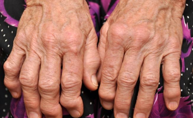 Псориаз и артрит псориатический являются очень распространенными и связанными между собой заболеваниями