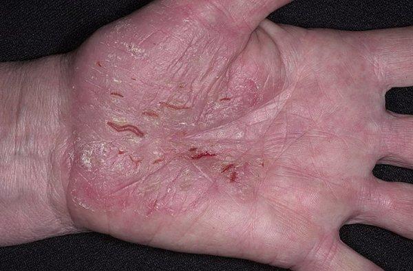 вылечить аллергию без лекарств