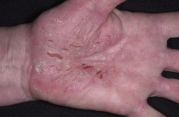 раны на руке от псориаза