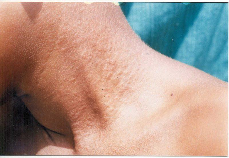 Когда показана биопсия кожи