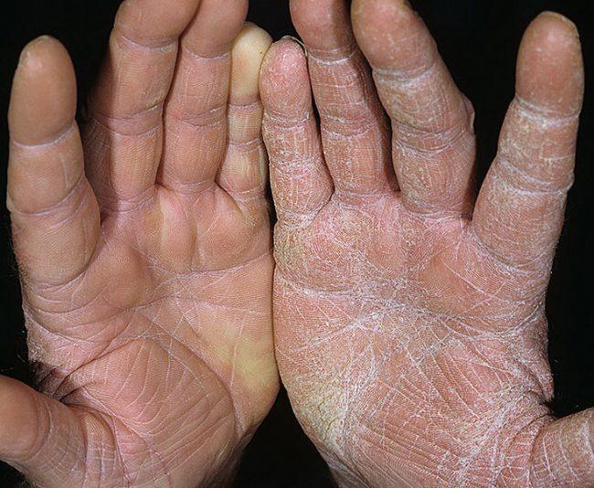 Псориаз на руках начальная стадия фотографии лечение