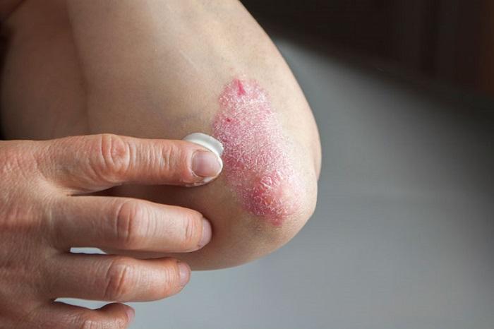 нанесение мази на рану