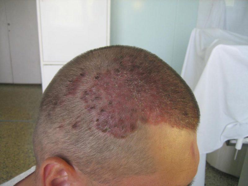 Мазь от псориаза на голове самые эффективные препараты для лечения