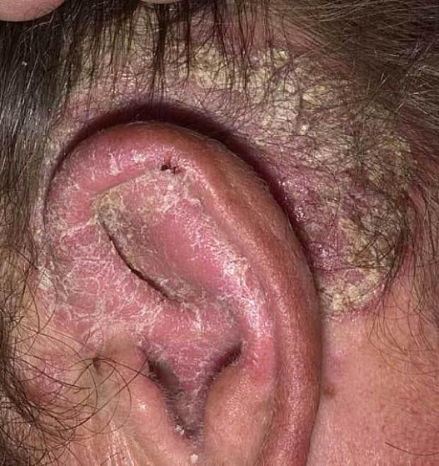 Образующиеся на коже чешуйки