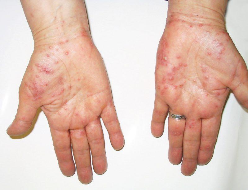Первые симптомы псориаза на руках