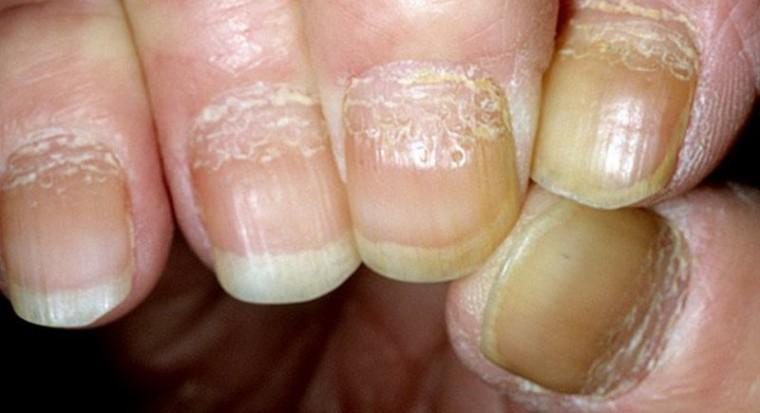 Поражены ногти