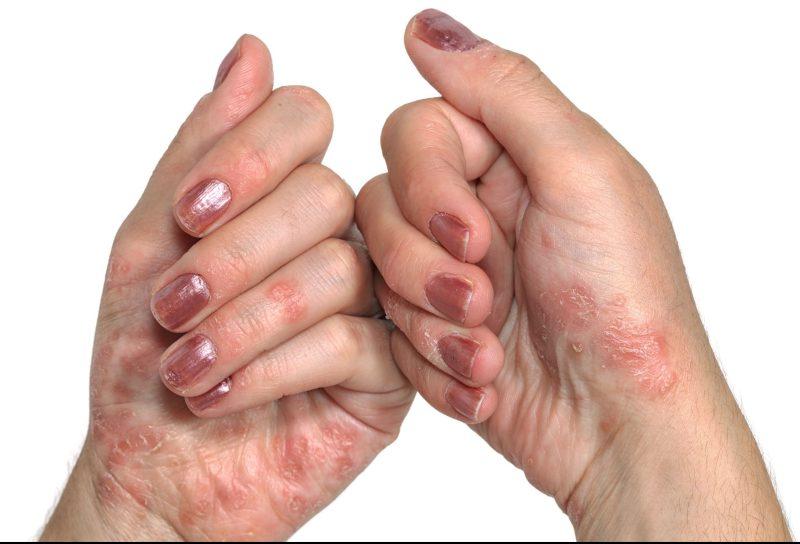 Иммунодефицит - причина возникновение псориаза