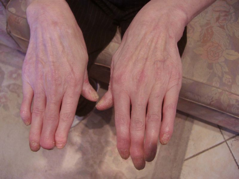 симптомы артропатического псориаз