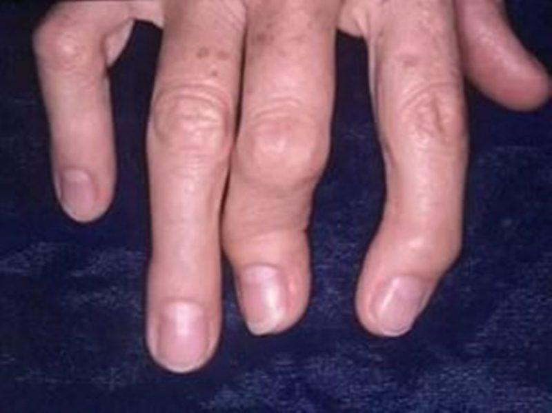 Симптомы и признаки появления псориаза