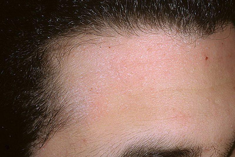 Чем отличается себорея от псориаза