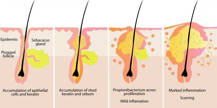 Воспалительные процессы луковиц волос