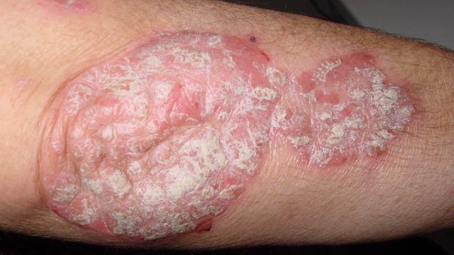 Вульгарный тип заболевания, наблюдающийся в 80%.