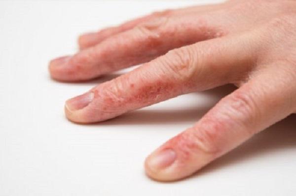 первые признаки псориаза на пальцах