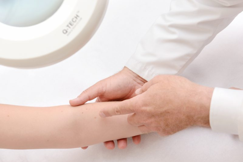Чистотел от псориаза - отзывы о лечении мазью с чистотелом, ванны