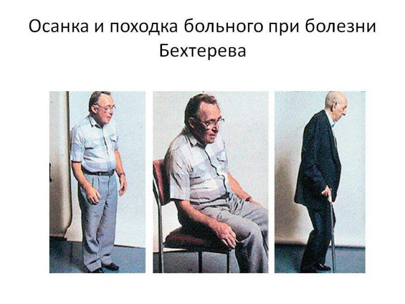 Болезнь Бехтерева поражает суставы человека