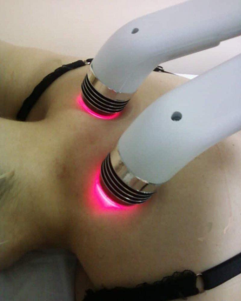 Лечение псориаза лазером и отзывы