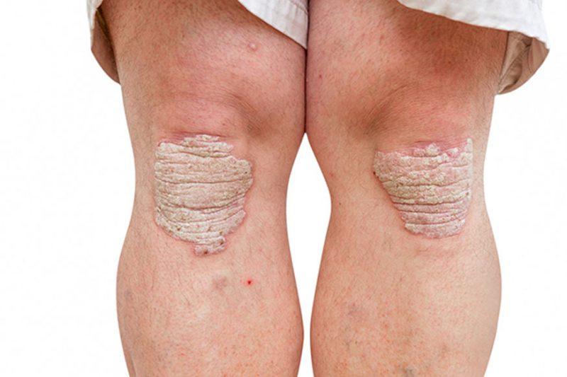 лечение псориаза на коленях