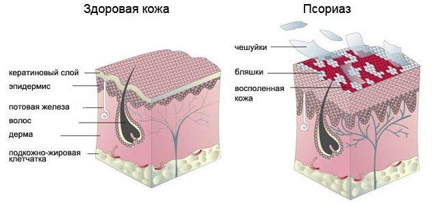 стадии псориаза
