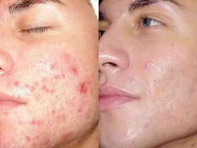 до и после использования салицилово-цинковой пасты