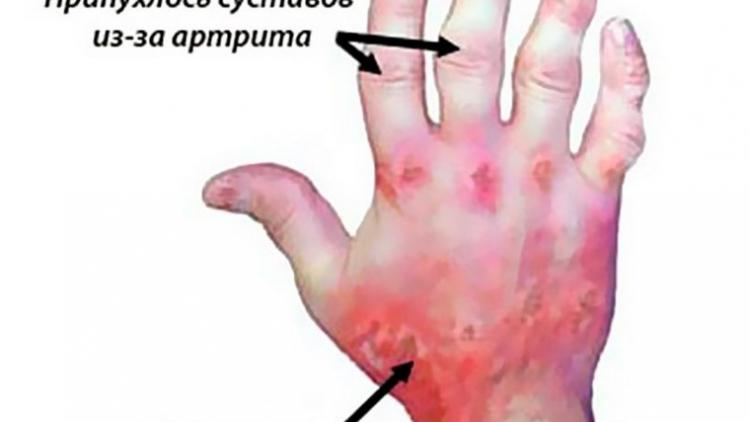 Комплексное лечение псориаза и псориатического артрита