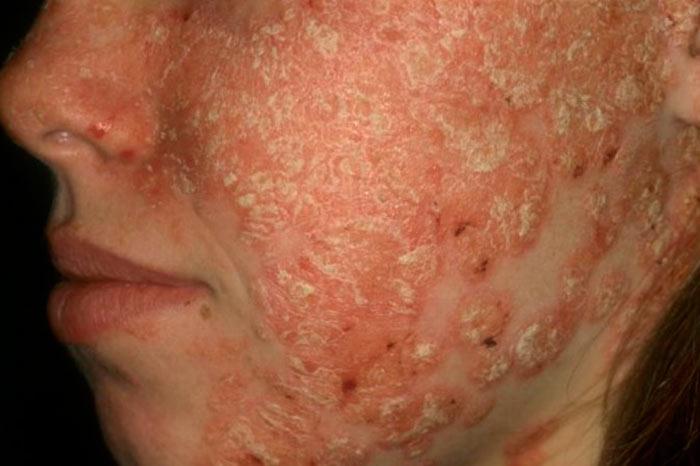 экссудативный псориаз