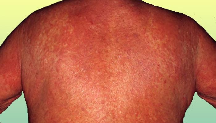 псориатическая эритродермия