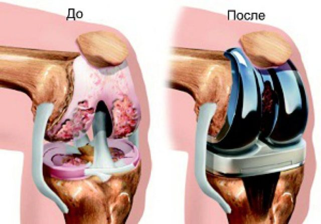 В зависимости от конкретного случая возможно полное или частичное эндопротезирование
